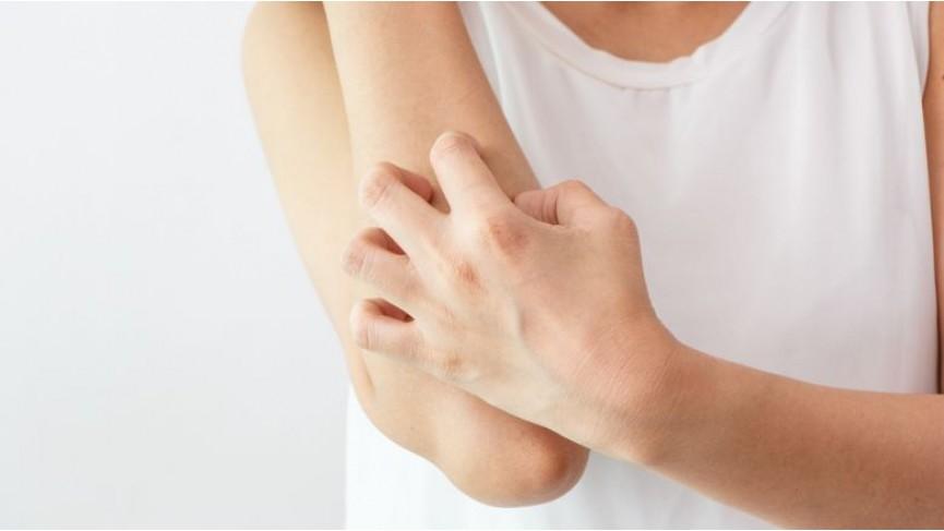 Dermatite atopica nell'adulto e nel bambino
